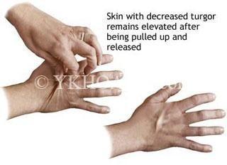 http://www.healthcentral.com/images/ency/fullsize/17223.jpg