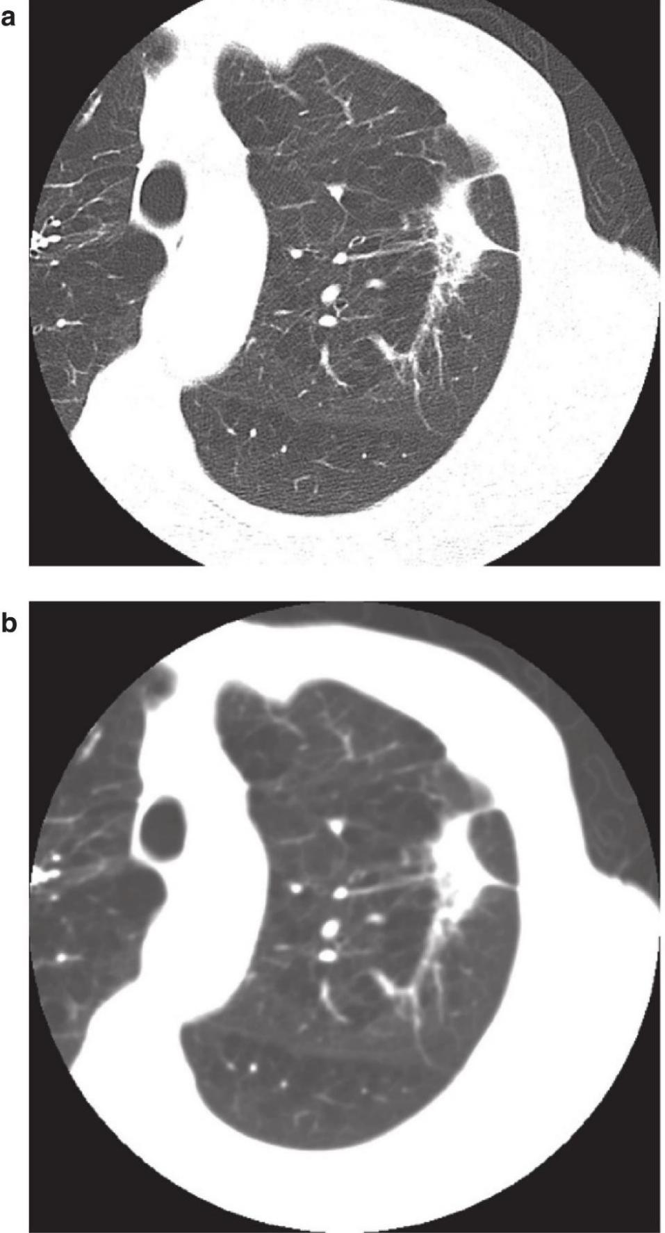 C:\Users\Administrator\Desktop\Chest X-Ray in Clinical Practice _ap_179.jpg