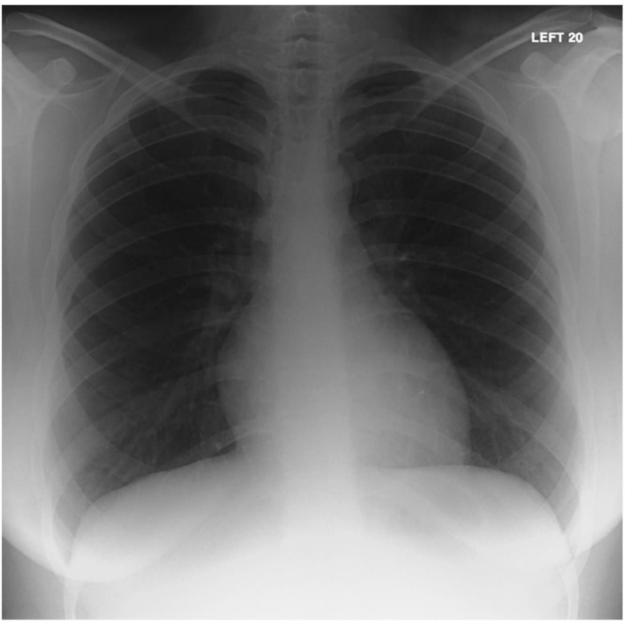 C:\Users\Administrator\Desktop\Chest X-Ray in Clinical Practice _ap_026.jpg