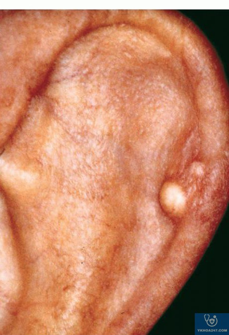 http://dermaamin.com/site/images/clinical-pic/g/gouty_tophus/gouty_tophus4.jpg