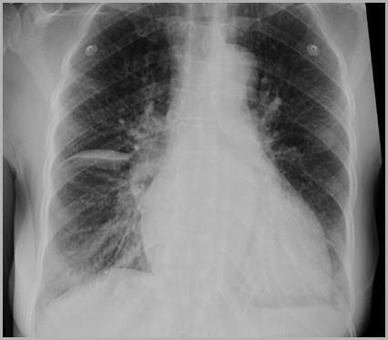 Kết quả hình ảnh cho pleural effusion horizontal fissure
