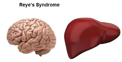 Những điều cần biết về hội chứng Reye