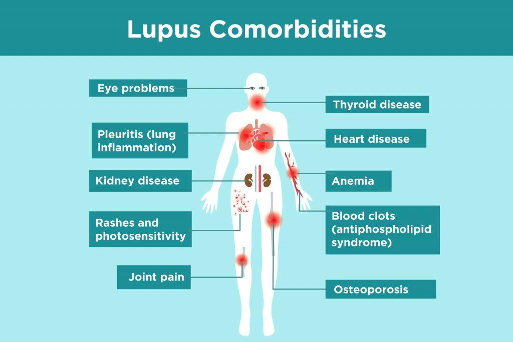 Những điều cần biết về lupus ban đỏ hệ thống
