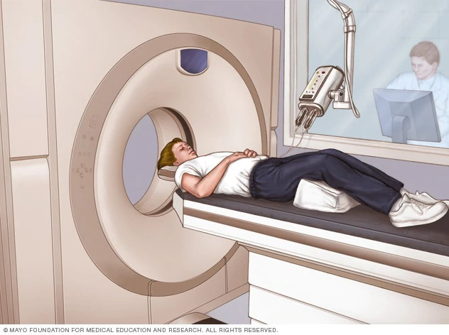 chup ct scan