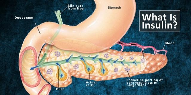 insulin la gi