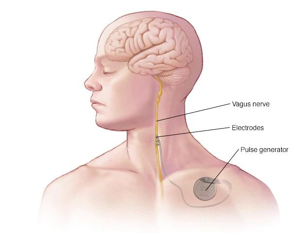 kích thích dây thần kinh phế vị