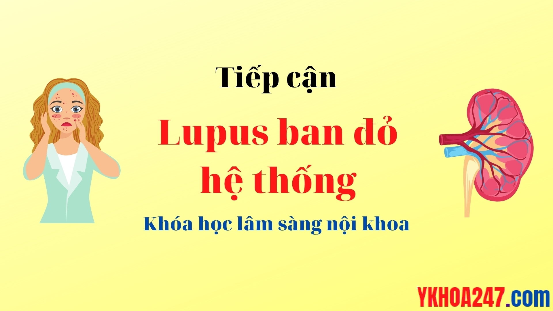 lupus ban do he thong
