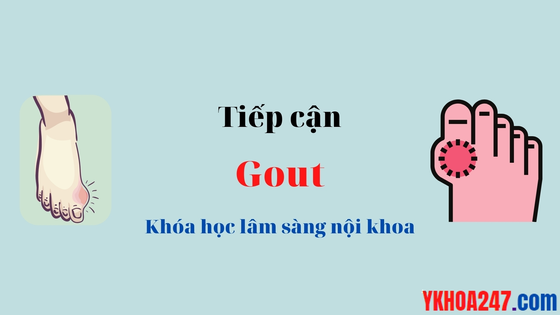 tiep can gout