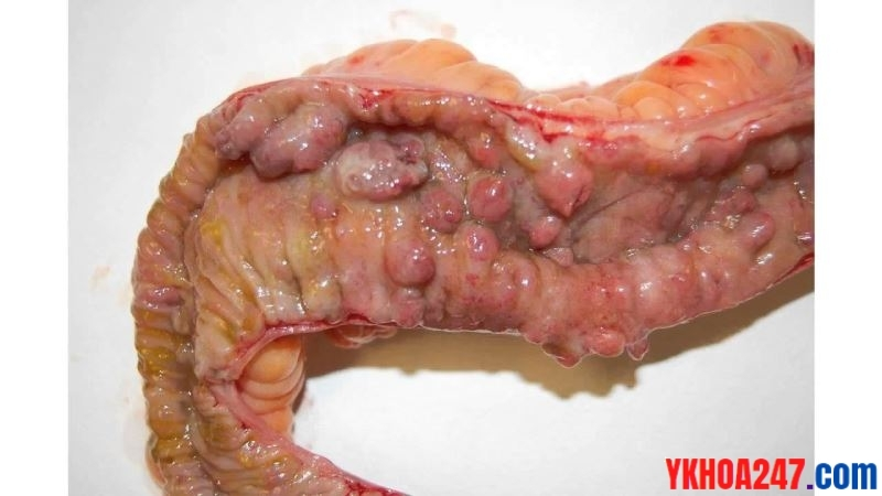 benh-Crohn